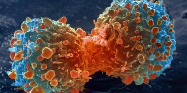 cancer - Pourquoi la prochaine génération de chercheurs sur le cancer a-t-elle besoin de soutien pour trouver un remède?